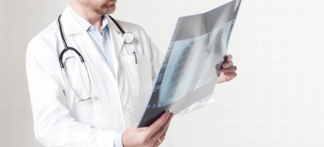 レントゲン写真を見る医師